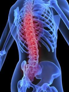 Falsas creencias y mitos sobre la osteoporosis