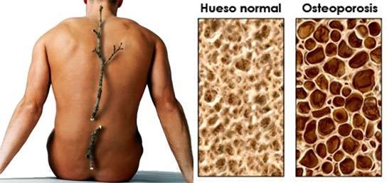 Huesos osteoporosis
