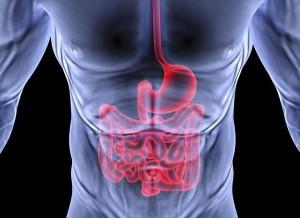 oclusión intestinal