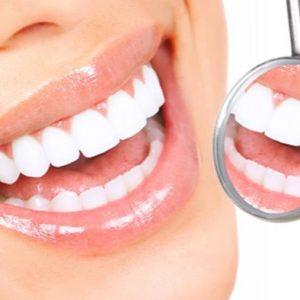 Dos tratamientos dentales para embellecer tu sonrisa