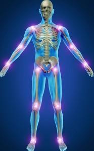 focos de artritis