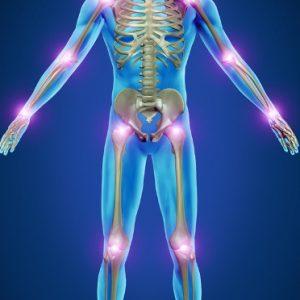 Remedios y consejos para tratar la artritis