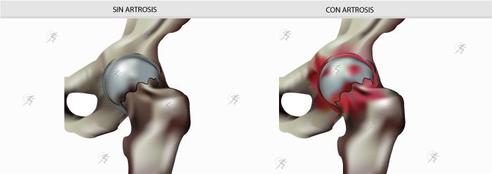 artrosis antes y despues