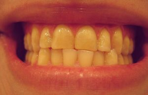 ¿Cuál es la causa de los dientes amarillos?