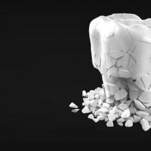 Ortodoncia invisalign: el mejor método de ortodoncia en la actualidad