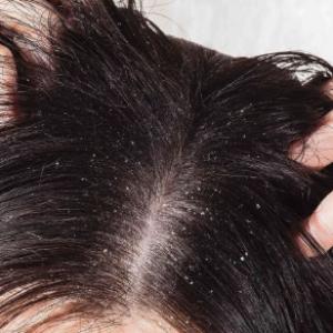 Los mejores productos para la caspa y el picor de la cabeza