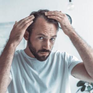 ¿Te está afectando la psicológicamente la pérdida de pelo?
