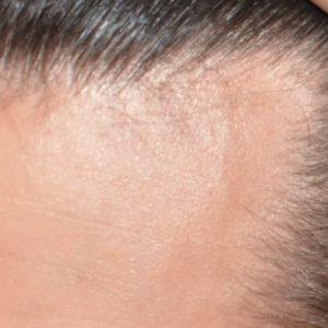 Combate la pérdida de cabello de forma milagrosa